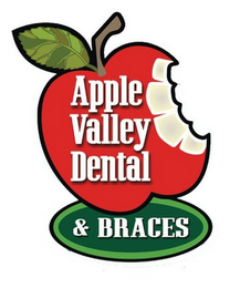 mark for APPLE VALLEY DENTAL & BRACES, trademark #85716528